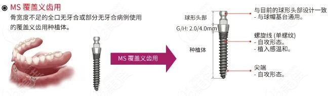 韩国奥齿泰MS适用于覆盖义齿