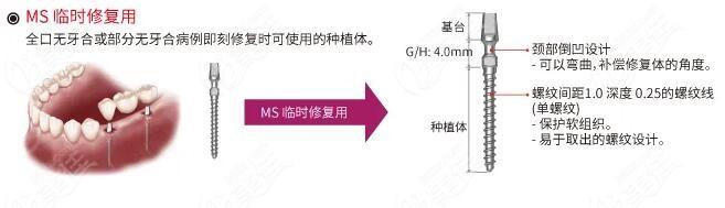 奥齿泰MS适用于种植牙临时修复