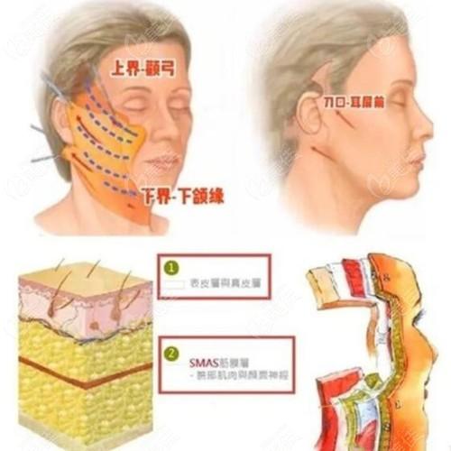 五洲整形做拉皮手术分层提升
