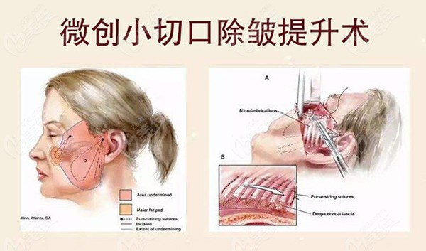 呼和浩特面部提升小切口除皱