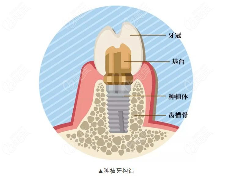种植牙的组成了解下