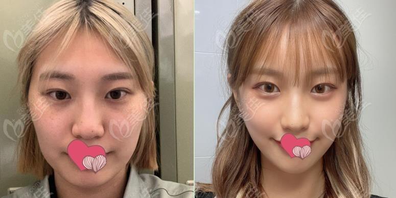 韩国1%整形做磨颧骨+下颌角整形前后对比图片