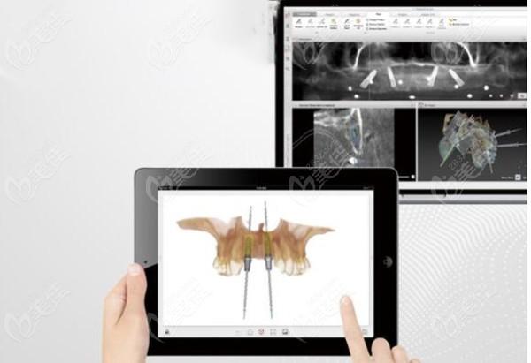 采用先进的3D数字化导板种植牙技术