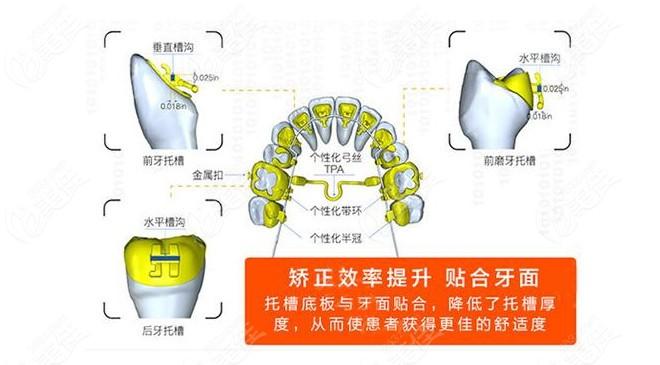 舌侧隐形矫正技术的优势