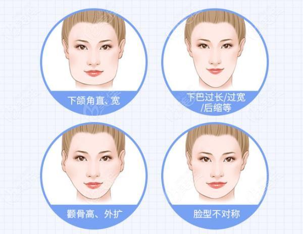 韩国1%整形林宗宇医生磨骨手术做的挺好