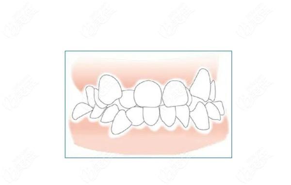 牙齿咬合不齐症状