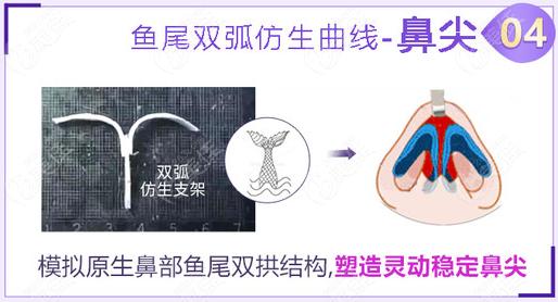 重庆美莱美人鱼尾鼻技术优势